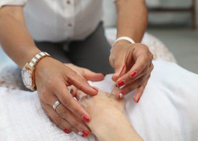 Préparation à la Naissance et Acupuncture